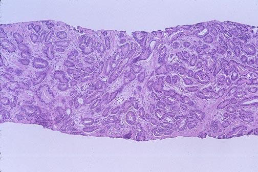 punteggio gleason della biopsia prostatica 6