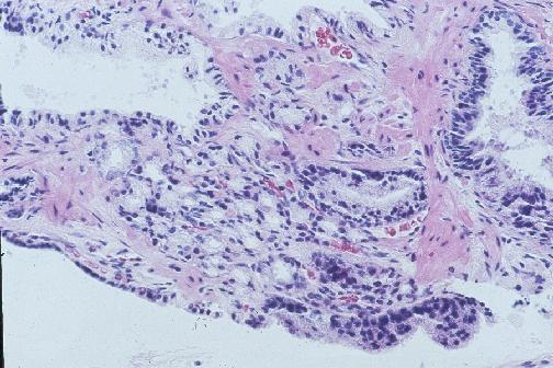tumore prostata gleason 4 4 cosa significa 2