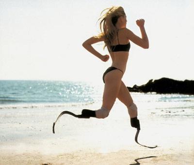 Aimée Mullin, protesi in carbonio