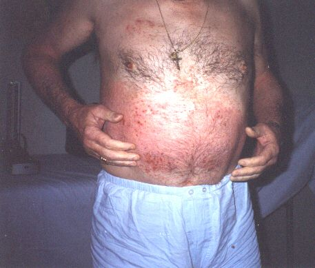 Come guarire la dermatite atopic al bambino circa un anno