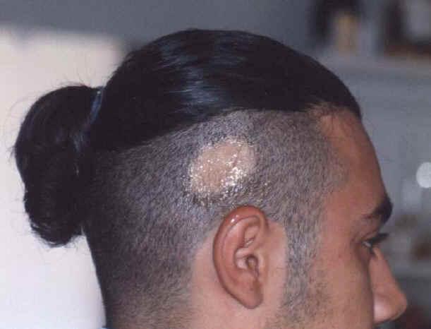 Buono lava da psoriasi sulla testa