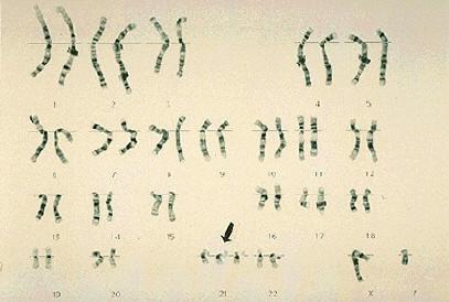 Mappa Cromosomica della Trisomia 21
