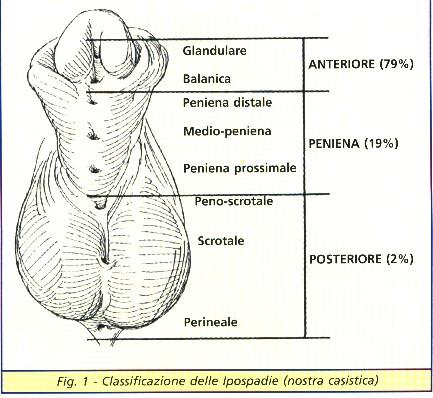 classificazione del pene