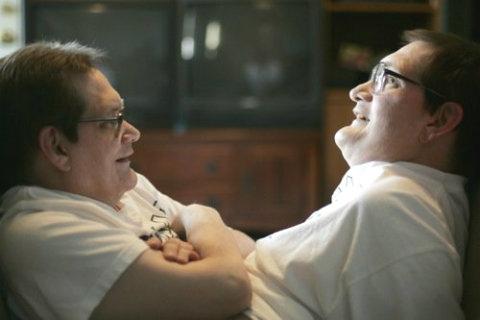 gemelli siamesi Gaylon, 62 anni