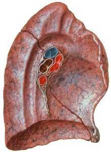 Configurazione esterna del polmone for Dolore addome sinistro alto